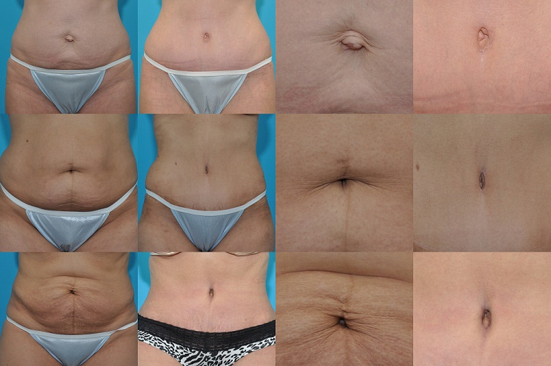 Belly Button in Tummy Tuck_reduced size