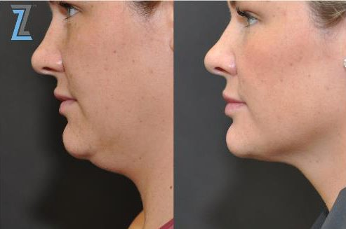 KYBELLA before and after photo
