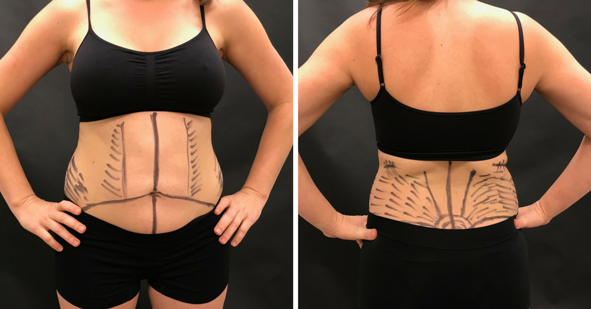 Our Surgical Care Coordinator's Personal Tummy Tuck Story