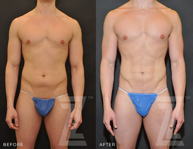 Before and After Male Liposuction Contouring