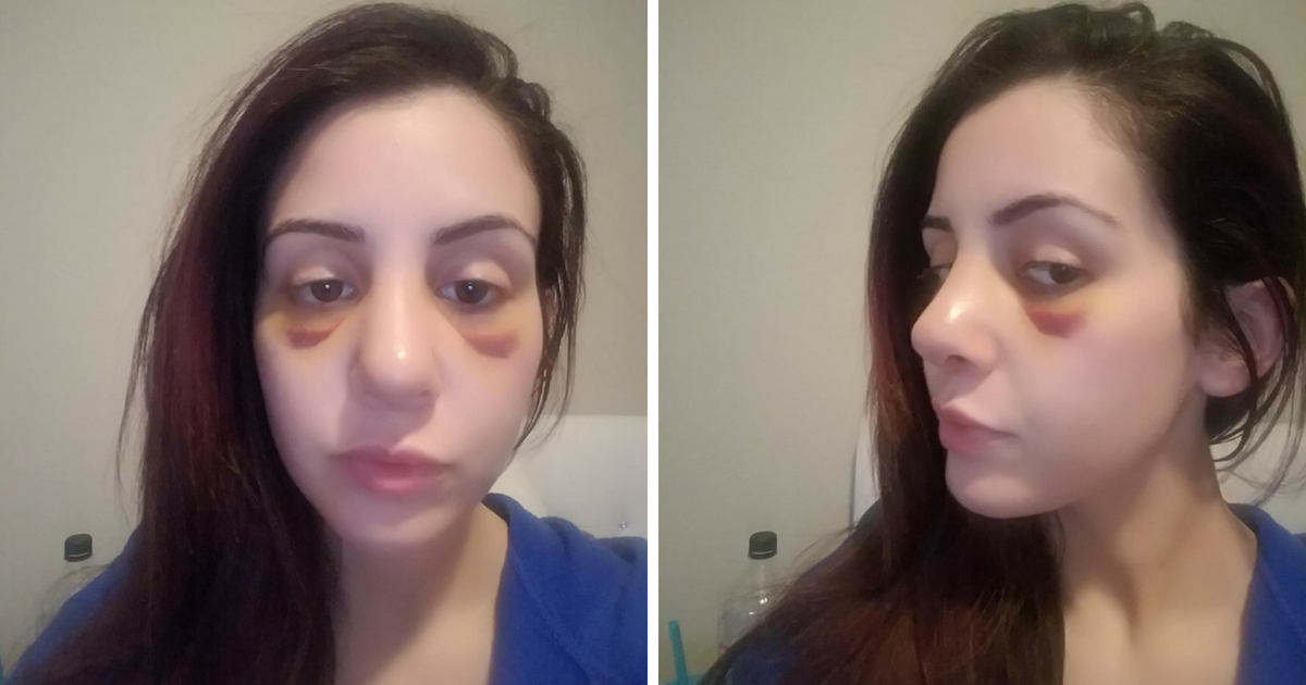 Post-rhinoplasty. Real patient photos.