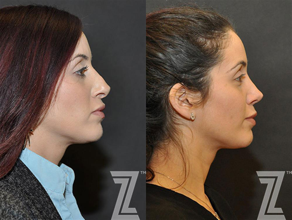 Before and after revision rhinoplasty.