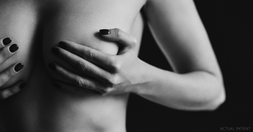 Breast augmentation for active women in Austin, TX