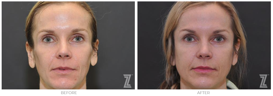 Sculptra results at The Piazza Center