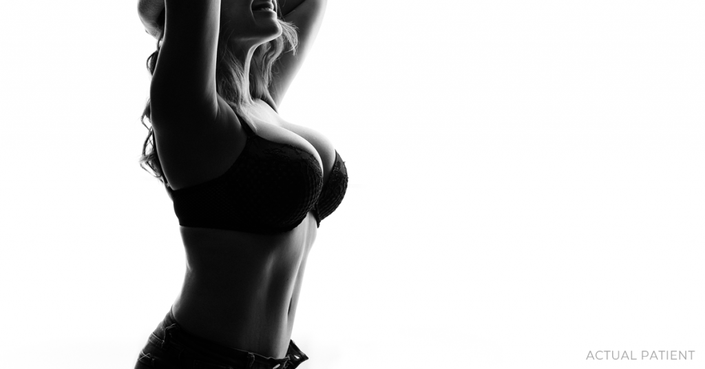 Profile silhouette of voluptuous woman in bra with arms above her head. Actual breast augmentation patient in Austin, TX