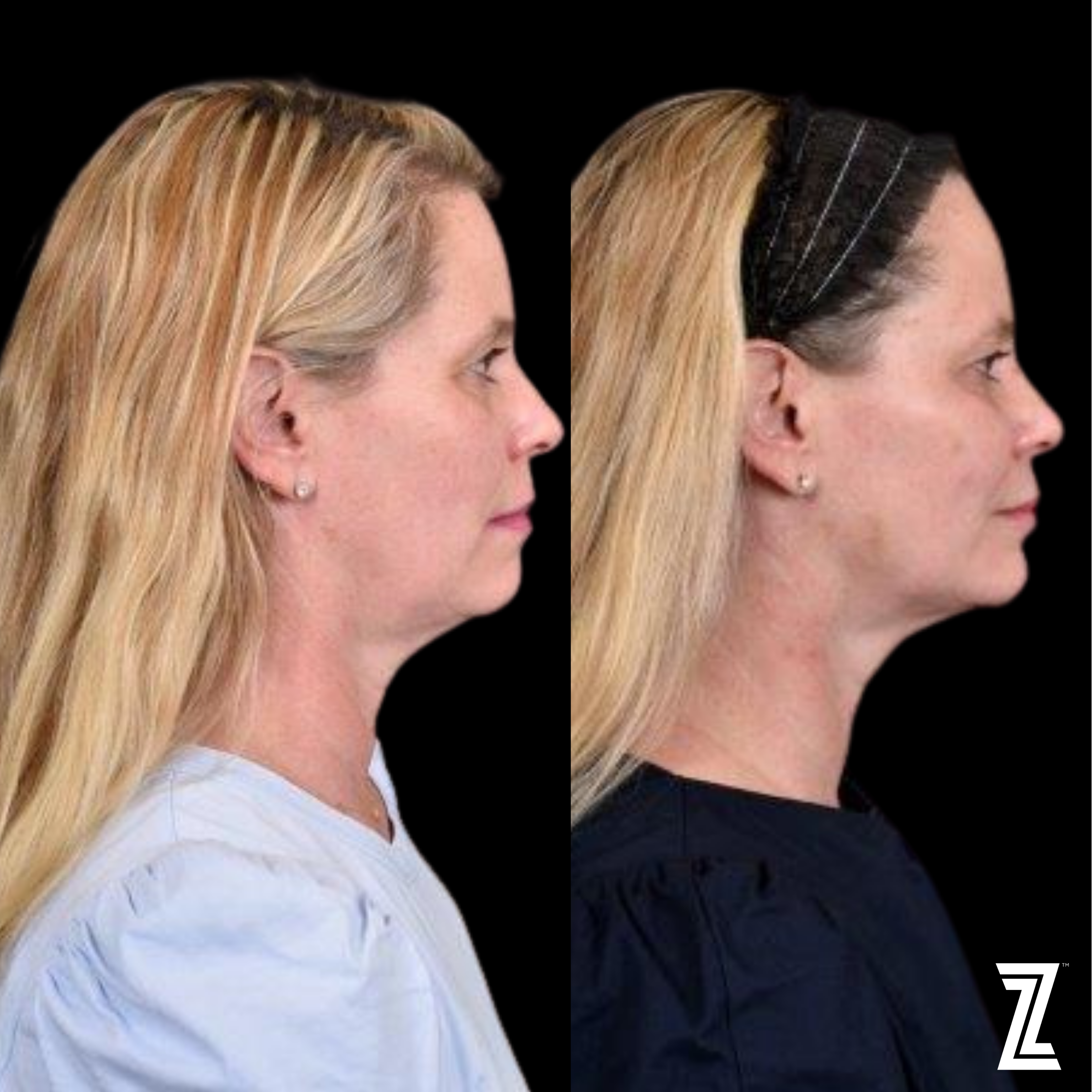 """""""Spring Refresh"""" Liquid Facelift with Botox and fillers before and after"""