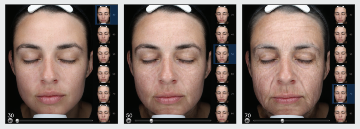 Woman's face shown during Visia aging simulation